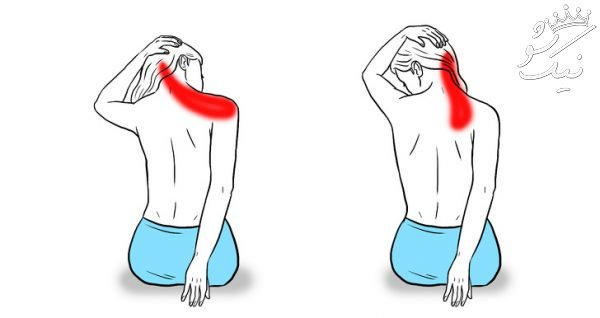 درمان درد گردن و شانه و پشت سر با ورزش های کششی