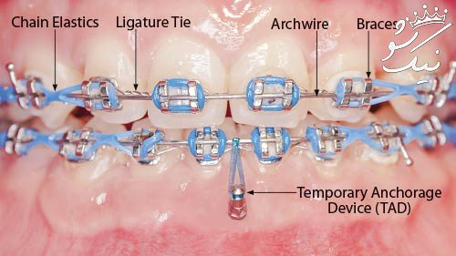 قیمت و هزینه ارتودنسی دندان سال 99   متحرک   فک بالا   نامرئی