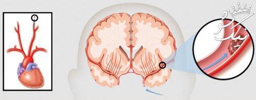 علائم سکته مغزی گذرا و شدید   عوارض بعد از سکته مغزی خفیف