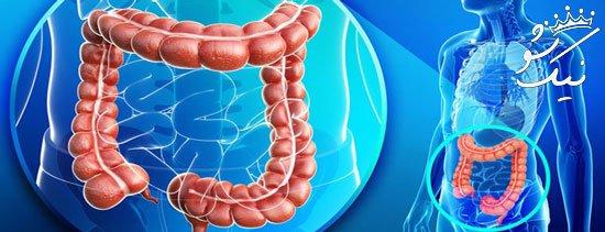 عواملی که سلامت روده ها را به خطر می اندازند