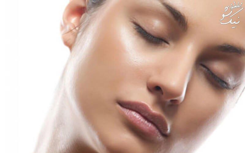 علت چرب شدن پوست صورت و سر
