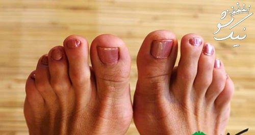 انحراف انگشت شست پا چطور درمان می شود؟