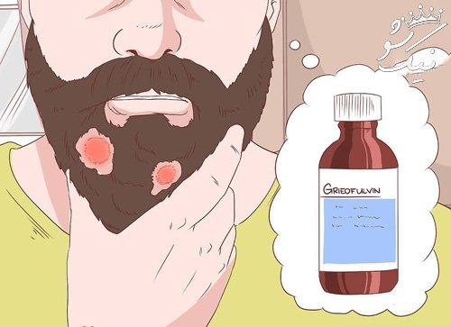 راه های جلوگیری و درمان قارچ پوستی