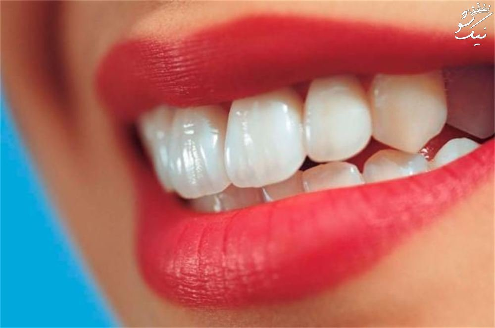 12 خطرناک ترین دشمنان پنهان دندان را بشناسید