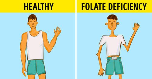 نشانه هایی که می گویند فولیک اسید بدنتان کم است