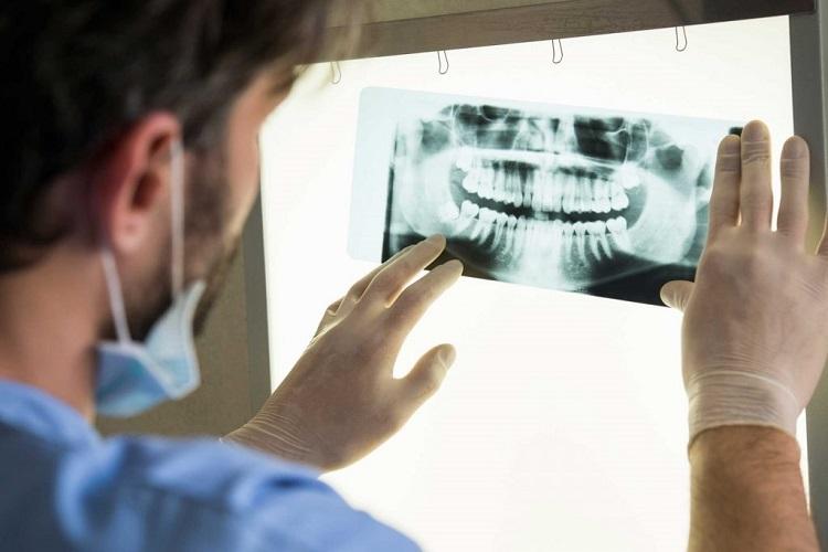 علائم پوسیدگی دندان چیست؟ دندان جلو و دندان عقل