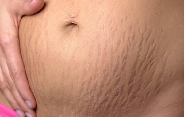 ترک نخوردن شکم در بارداری | چرب كردن شكم در بارداري