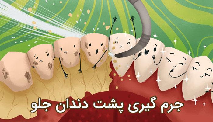 جرم گیری پشت دندان های جلو با روش های خانگی قطعی
