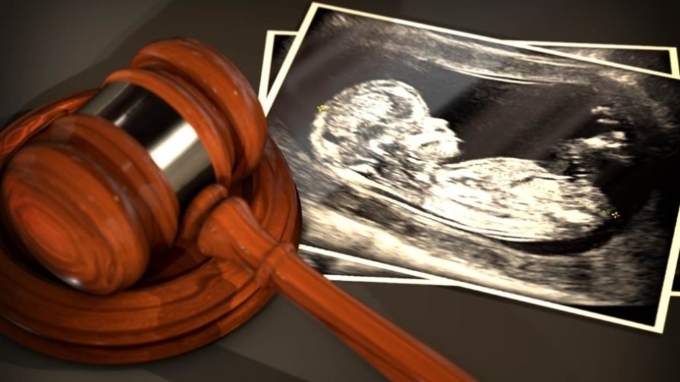 سقط جنین تا چند ماهگی امکان دارد و مجاز است؟