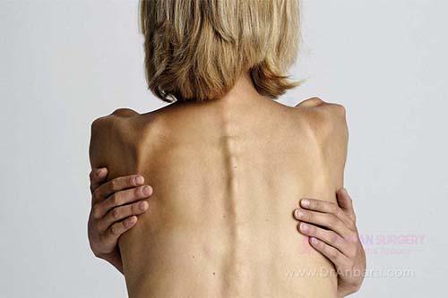 آنورکسیا چیست؟ بی اشتهایی عصبی و عوارض آن