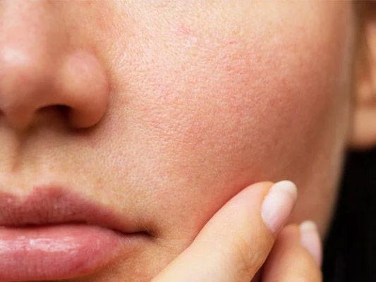 چگونه منافذ پوست را ببندیم؟ معرفی روش های خانگی