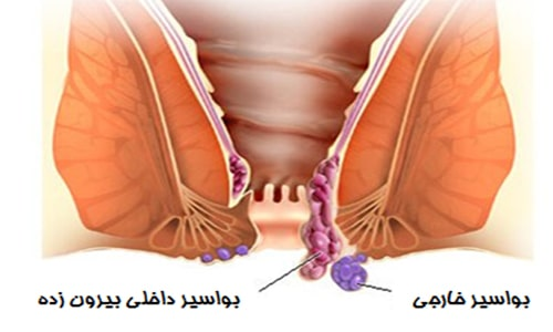 درمان بواسیر با روغن زیتون