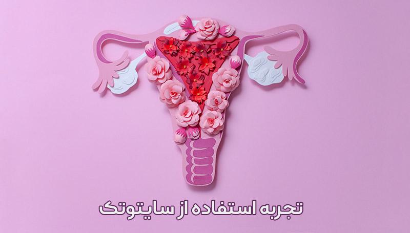 تجربه استفاده از قرص سایتوتک (Cytotec) ، سقط جنین